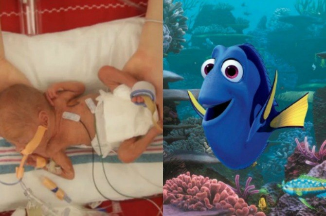 "Just keep swimming: How ""Finding Dory"" inspired this preemie and his family"