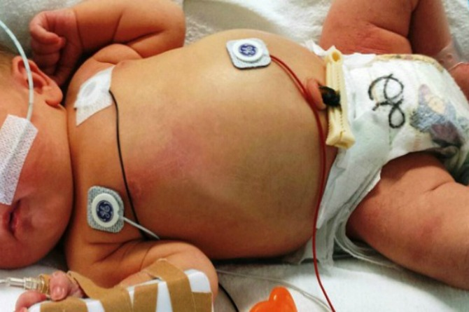 Mum pens heartbreaking post about newborn's death caused by Cronobacter Infection