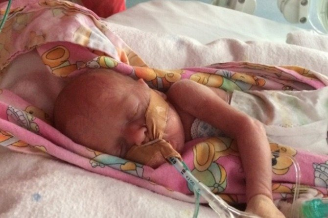 Premature baby girl survives meningitis, lung collapse, and a bleeding brain