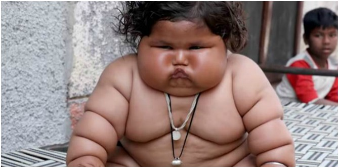 OMG! This 8-month-old baby girl from Punjab weighs a whopping 17 kilos