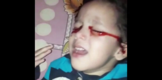 Toddler's mystery condition causes her to cry blood!