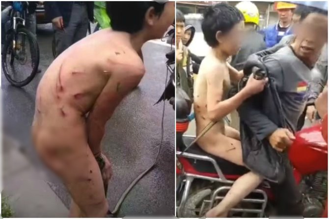 12-year-old boy dragged bruised and naked through the streets by his dad