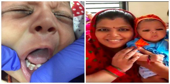 OMG! Gujarat baby born with 7 fully-developed teeth!