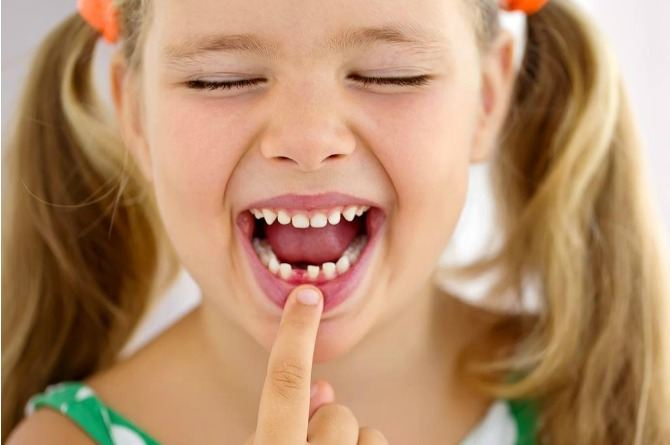 Expert talk: Should you wait for your child's milk tooth to fall on its own or pull it out?