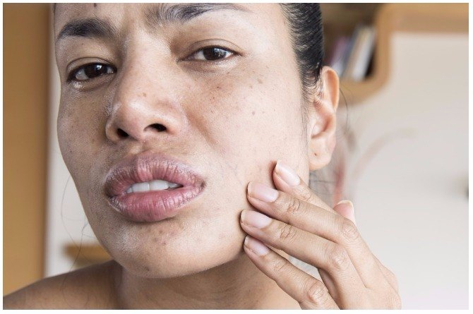 Acne could indicate a thyroid condition.