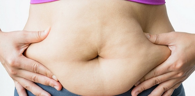 Diastasis recti: All you need to know about this postpartum condition