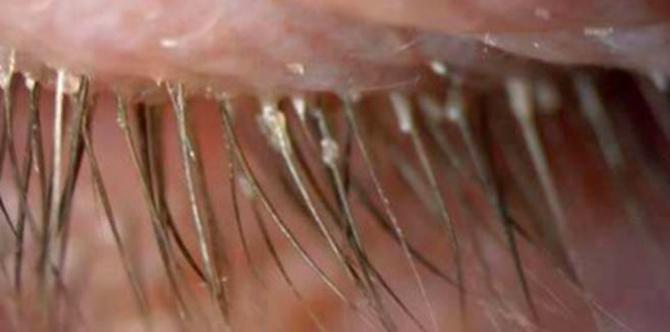 Over 100 eye parasites caused this woman's eye itching and redness