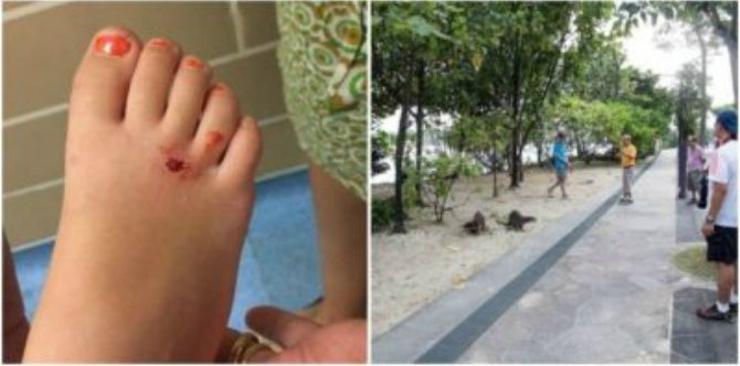 Bitten by otter: Little girl in Singapore left with bleeding foot