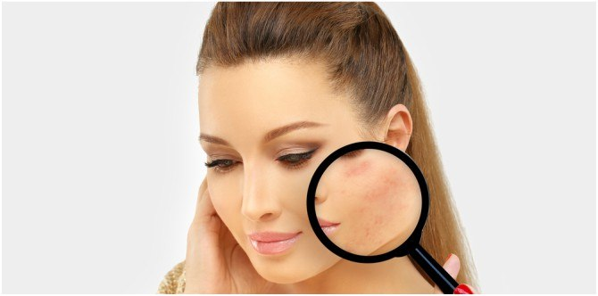 How to remove pimple marks: 5 tried and tested desi remedies that work!