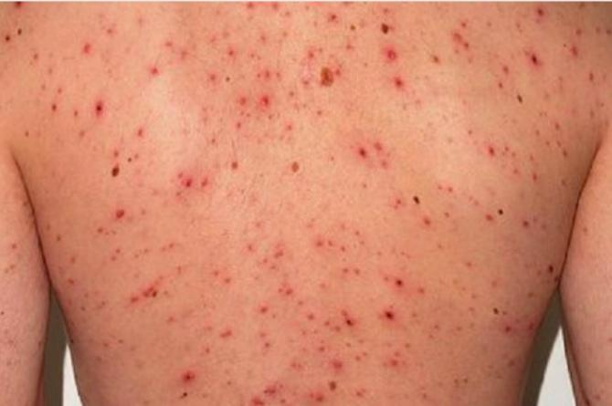 Facts About Chickenpox In Adults Everybody Must Know