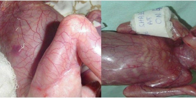Was This Baby Born Skinless Because His Mum Took Potent Drugs In Pregnancy?
