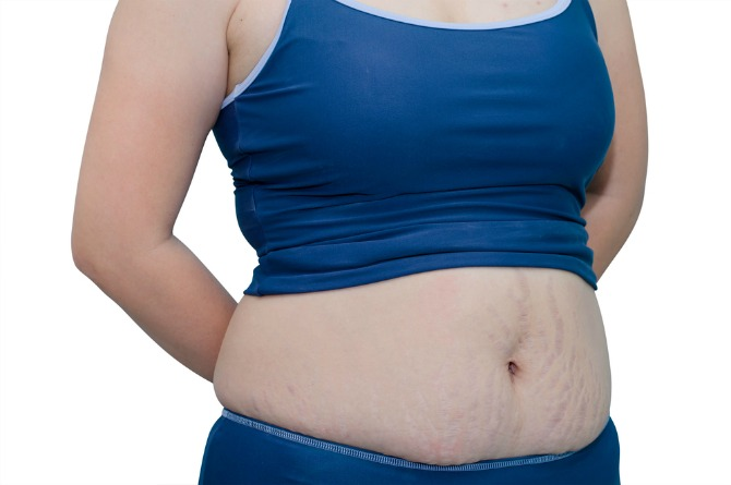 #15 That line on your belly might linger for a LONG time