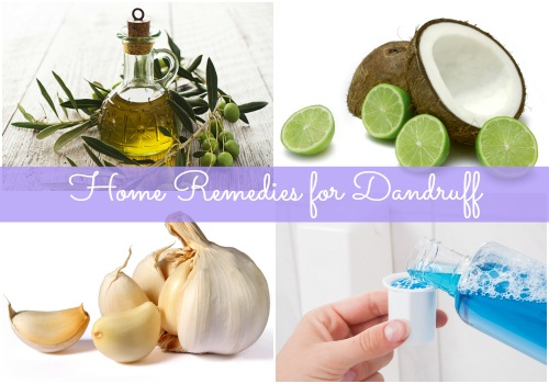 5 Home remedies for dandruff that really work!